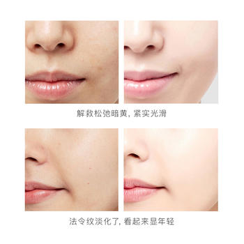 (10片)肌琳莎  抗皱淡纹 修复紧致 法令纹贴 补水保湿面膜贴